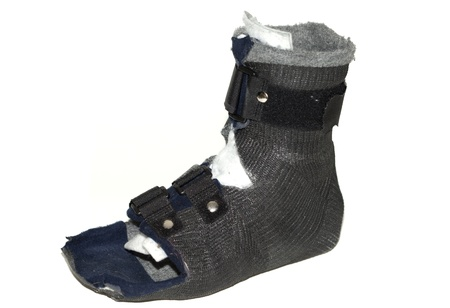 Protective inexpensive foot casting bandage  made of synthetic cast for walking photo