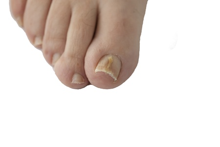 Foot with fungal toe nail infection  photo