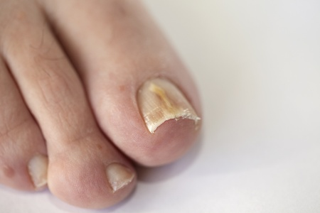 podiatrist: Foot with fungal toe nail infection
