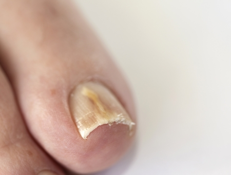 infections: Footnail with fungal disease called  onychomycosis Stock Photo