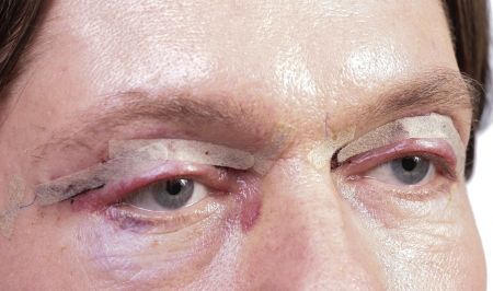 bruised: Cosmetic surgery on eyes of a man one day after the surgery