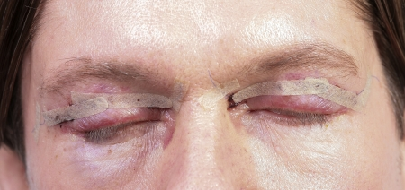 Cosmetic surgery on mens eyes photo