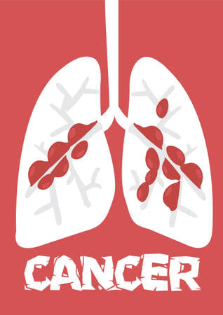 Flat cartoon lung cancer vector illustration on a red background.