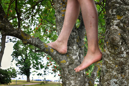 Child with bare feet climbing tree in park. Stock Photo