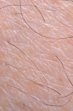 hypersensitivity: close up dry skin and hair