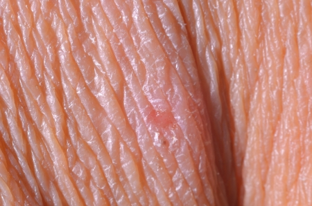 close up dry skin and lesion