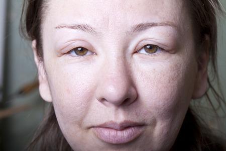 アレルギー性浮腫を持つ少女 写真素材