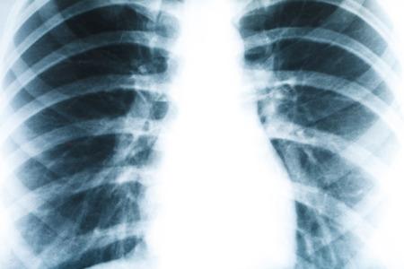 人間の肺のクローズ アップ、医学と健康の x 線