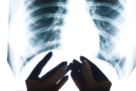 X-ray of human lung closeup