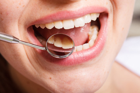 歯科、口と歯が笑顔を間近します。 写真素材