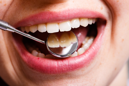 dentistry, dental , mouth and teeth close up smiling Фото со стока