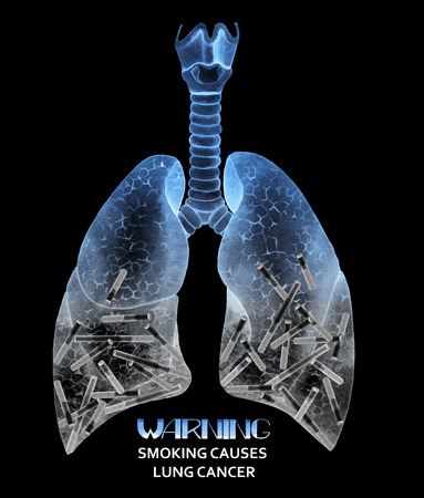 human lung: Watercolor  lungs full of cigarettes. Warning. Smoking causes lung cancer. Anatomy collection - X-rays of lungs. Watercolor isolated organ Stock Photo