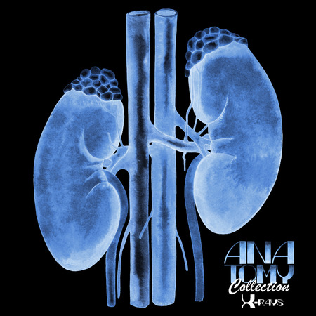 renal stone: Watercolor Anatomy collection - X-rays of kidney. Isolated organ Stock Photo