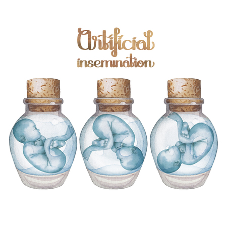 insemination: Watercolor fetus in the glass bottle. Artificial insemination or IVF topic. Hand painted design isolated on white background