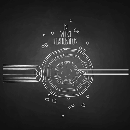 In vitor fertilisation. Artificial insemination. Graphic medical illustration. Vector design isolated on white chalkboard