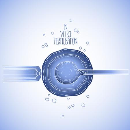 insemination: In vitor fertilisation. Artificial insemination. Graphic medical illustration. Vector design in blue colors