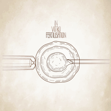 fertilisation: In vitor fertilisation. Artificial insemination. Graphic medical illustration. Vector design isolated aged paper Illustration