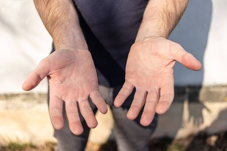 Man shows very dry hands peel due to washing alcohol on Covid19 situation. Horizontal close up of the inside of a very sore dry male hand with flakey skin. On the street with sunshine and shadows.