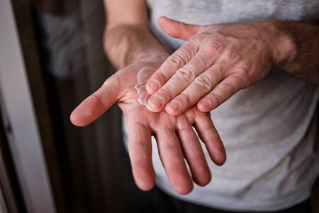 Man putting moisturizer onto his hand with very dry skin and deep cracks with cream due to washing alcohol on Covid19 situation. Horizontal close up of the inside of a very sore dry cracked male hand.