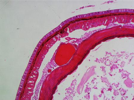 lombriz: Lombriz de tierra bajo el microscopio
