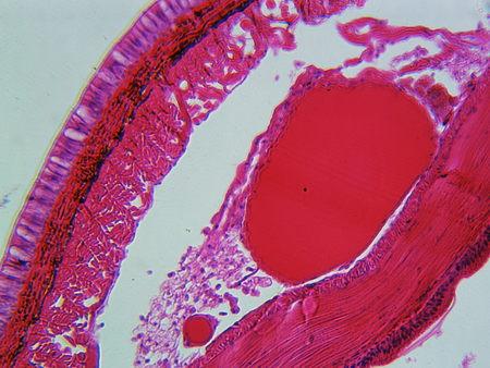lombriz de tierra: Lombriz de tierra bajo el microscopio