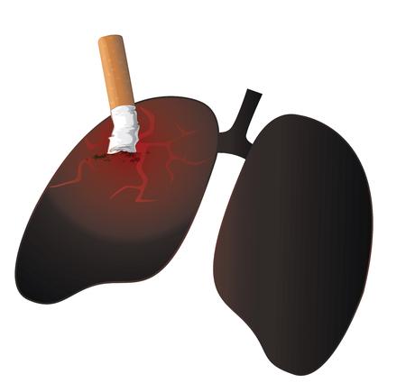 Smokers lung , No Smoking Concept Vector Illustration