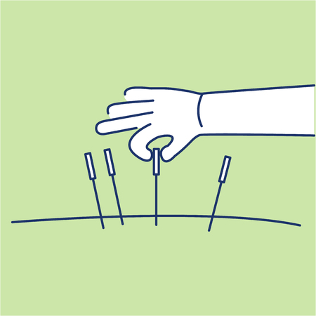緑の背景に鍼癒しの白い直線アイコン |癒しのイラストとインフォ グラフィック フラット デザイン代替  イラスト・ベクター素材