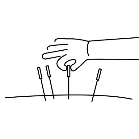 治癒: Acupuncture healing black linear icon on white background   flat design alternative healing illustration and infographic  イラスト・ベクター素材