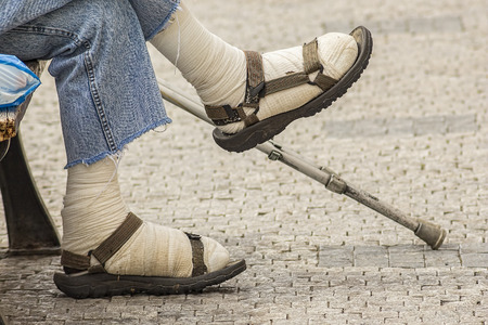 hombre pobre: Heridos o lisiados piernas lesionadas de un pobre hombre sentado en un banco con un palo
