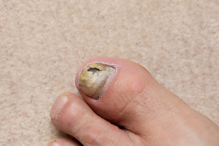 Close-up of ill male foot thumb nail, fungal nail.