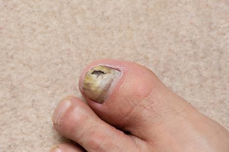 Close-up of ill male foot thumb nail, fungal nail.