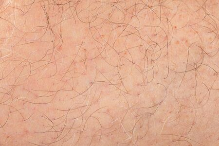 Abstract background of male adult human skin with hair Standard-Bild