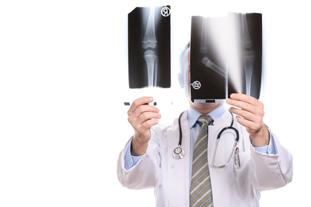 Male doctor, radiologist or orthopaedic surgeon comparing two x-rays holding them up to the light concealing his face, isolated on white