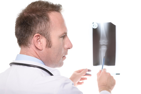 orthopaedic: Doctor or orthopaedic specialist consulting an x-ray of a knee joint pointing with his pen and turning his head to the side as though waiting for a colleague to comment, on white