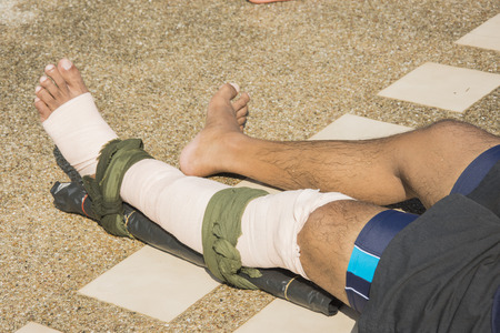 techniek: elastische bandage van toepassing druk geïmmobiliseerd techniek of PIT wind rond linkerbeen