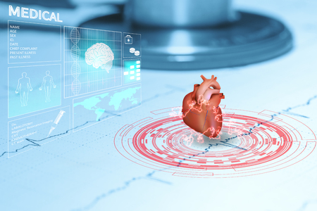Corazón y estetoscopio en gráfico paciente de datos ekg Foto de archivo - 84608569