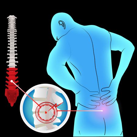 Low back pain herniated disc and anatomy man Illustration