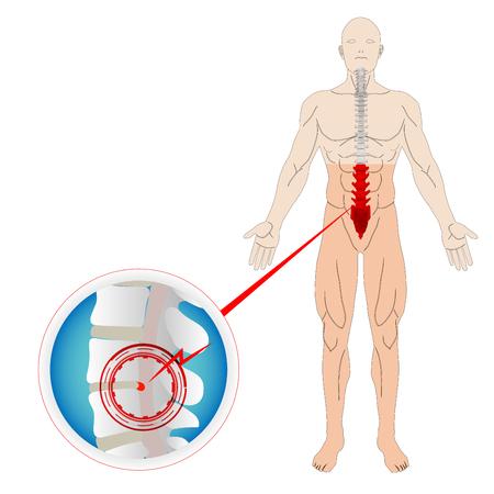 Hernia Discal Espina Hueso Y Nervio Cerca De La Médula Espinal ...