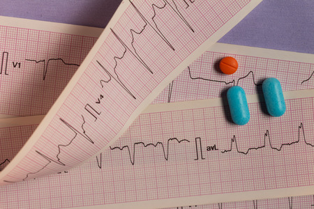 Medications in the form of tablets for oral use on an electrocardiogram background. Heartbeat represented on graph paper.