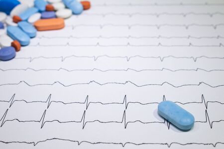 Electrocardiogram with Brugada syndrome. Colored pills on an EKG path. Sudden cardiac death due to arrhythmias. Myocardial disease