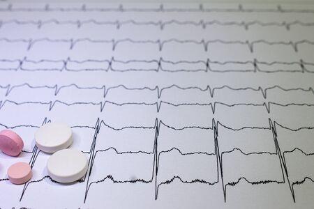 Electrocardiogram with Brugada syndrome. Colored pills on an EKG path. Sudden cardiac death due to arrhythmias. Myocardial disease Stock Photo