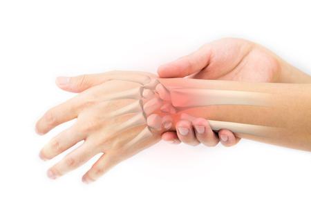 radiogram: wrist bones injury Stock Photo