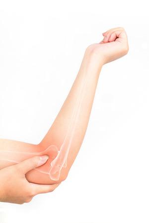 elbow bones injury white background Фото со стока - 67679781