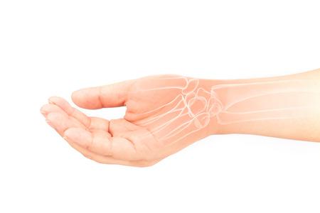 radiogram: wrist bones injury white background