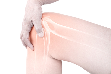 Knee Bones Pain Stock Photo, Picture And Royalty Free Image. Image ...