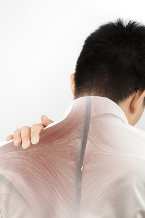 spine muscle injury Stock Photo