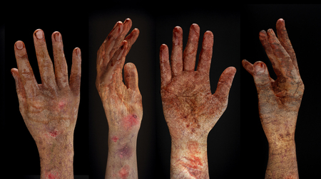 rising dead: Bloody hands background,maniac,Blood zombie hands