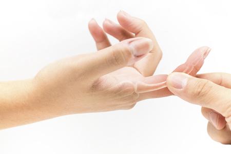손가락 뼈 통증 스톡 콘텐츠