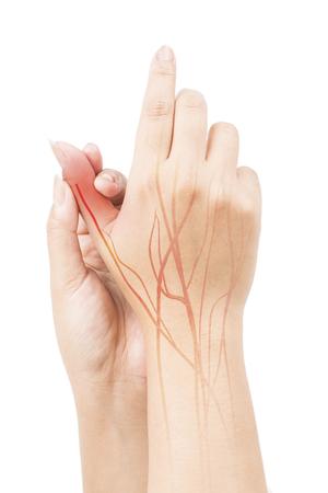 finger nerve pain