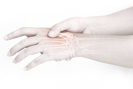 hand bone pain white background hand injury Imagens